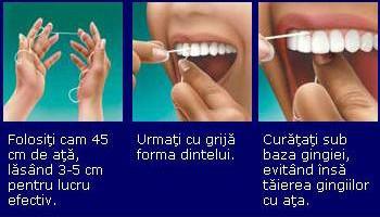 igiena orala : tehnica folosirii atei dentare