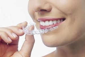 estetica dentara : pozitionarea gutierelor de albire pe dinti
