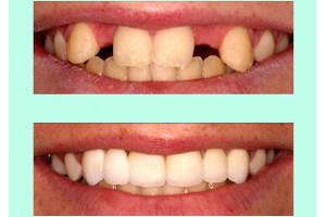 implant dentar, rol : refacerea functiei estetice