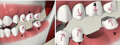 migrarea dintilor dupa extractie este un motiv important al indicarii unei lucrari pe implant dentar